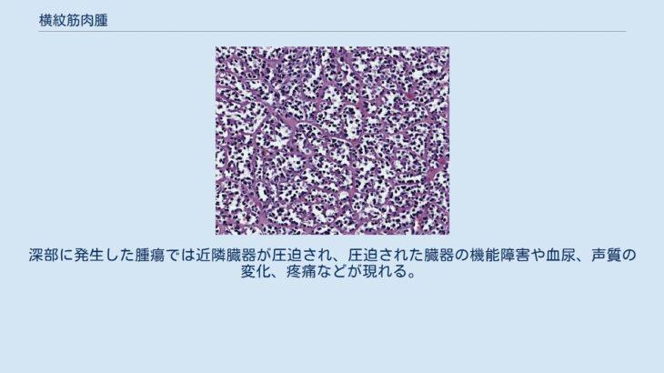 横紋筋肉腫